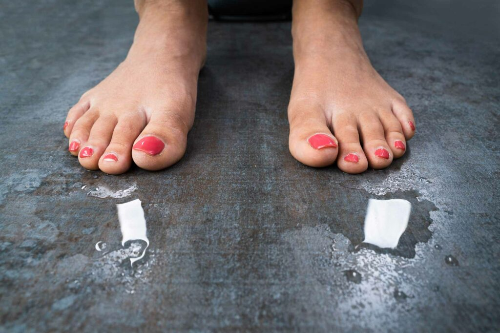 woman having sweaty feet