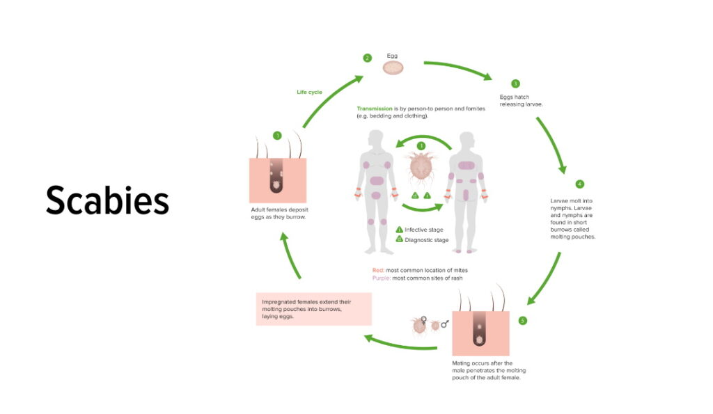 scabies life cycle