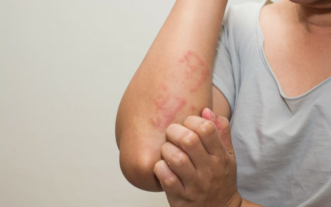 a woman suffering from scabies