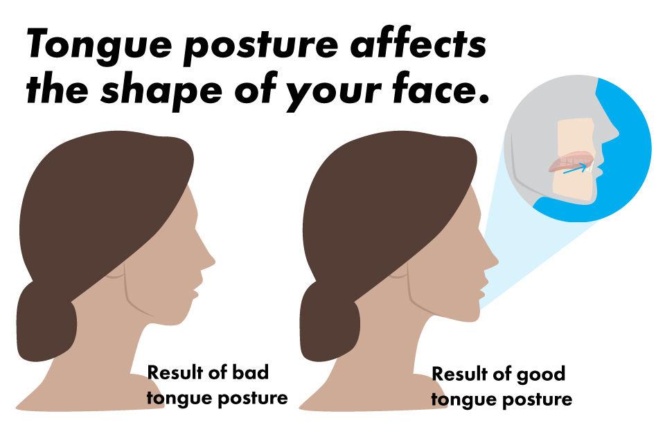 results of good and bad tongue posture