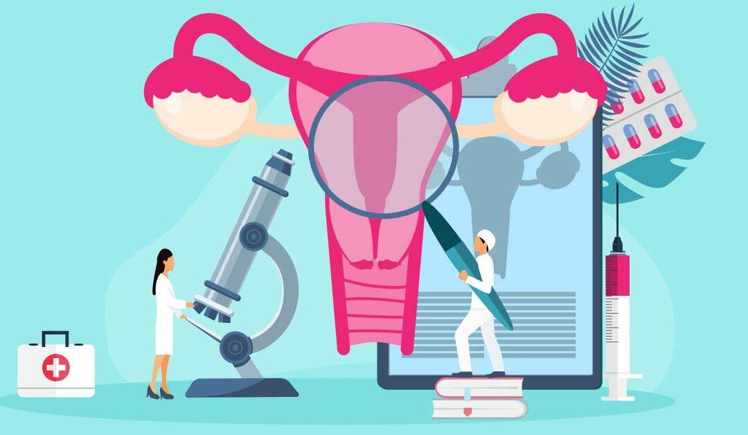 cervical cancer illustration